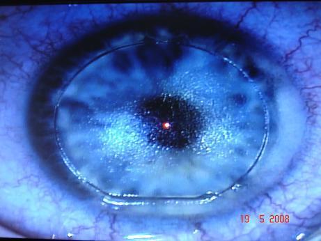 Le volet cornéen est soulevé laissant le laser excimer réaliser le traitement réfractif.