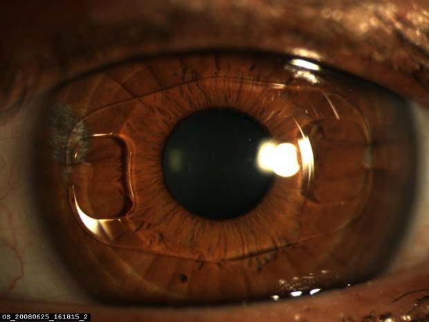 Implant Artisan en place, parfaitement centré sur une pupille bien ronde.