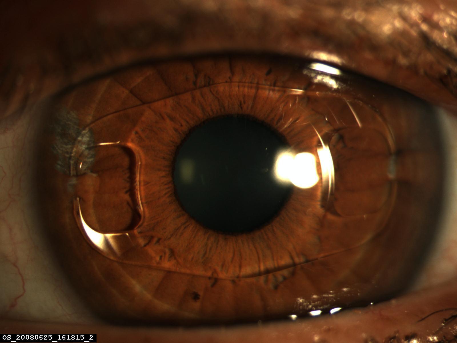 Implant Artisan en place, parfaitement centré sur une pupille bien ronde. 88a537fb6df8