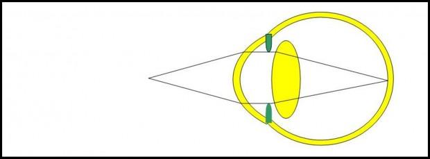 La contraction du cristallin du sujet jeune permet aux images de près de converger vers la surface rétinienne.