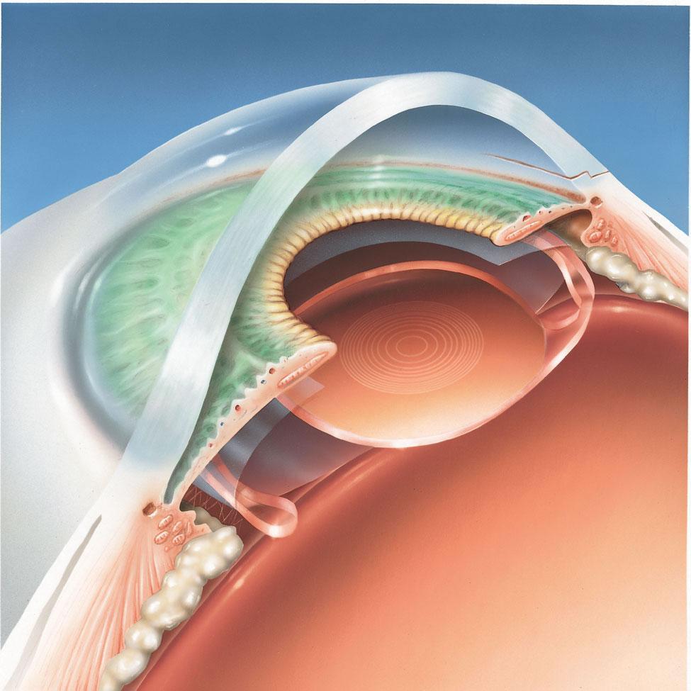 L'implant cristallinien a pris la place du cristallin naturel dans son sac.