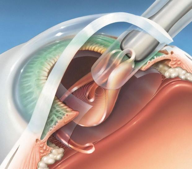 L'implant multifocal est injecté dans le sac capsulaire totalement vidé de son contenu