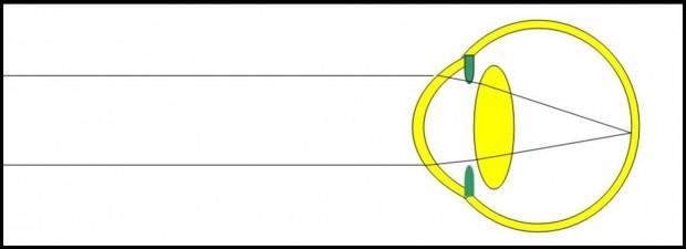 L'accommodation permet à l'oeil hypermétrope jeune de ramener les images distantes sur la rétine, pour une hypermétropie modérée