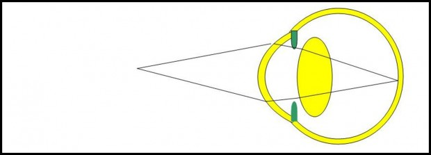 Dans l'oeil hypermétrope, le cristallin doit se contracter encore plus en vision de près pour assurer la vision nette des objets proches.