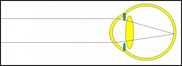 les rayons lumineux provenant de l'infini convergent vers la rétine après avoir traversé la cornée et le cristallin.