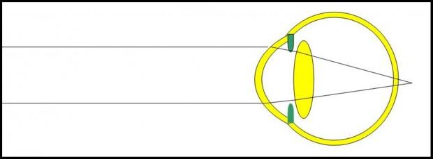 Dans l'oeil hypermétrope, l'image des objets situés à distance se projette en arrière de la rétine car l'oeil est anatomiquement trop court