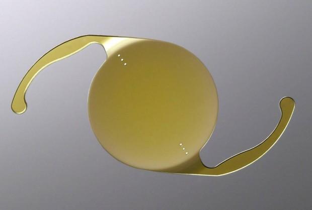 L'implant torique est devenu incontournable dans la chirurgie de cataracte es cas d'astigmatisme associé.