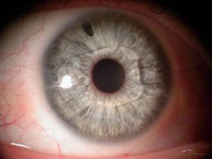 Implant phaque en place en chambre antérieure. Visibilité de l'iridotomie périphérique destinée à prévenir l'hypertonie oculaire.