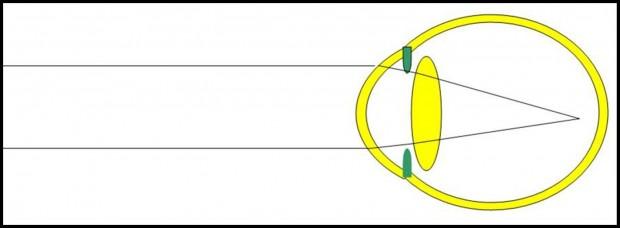 L'oeil myope est trop long et les images des objets situés à distance se projettent en avant de la rétine.