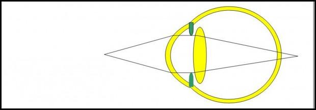 Lorsque le cristallin ne peut plus se contracter, les images des objets proches se projettent en arrière de la rétine et la vision est donc floue de près