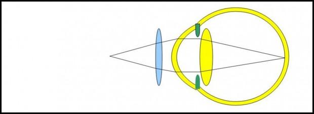 Pour pallier le manque d'accommodation, la correction optique ramène sur la rétine l'image des objets proches.